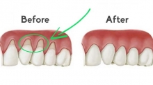 Gum Recession Treatment