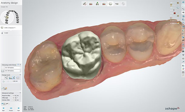 SAME-DAY crowns with digital technology