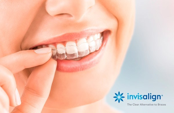 What are the clear benefits of invisalign